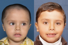 Combined Atresia Microtia Before & After 1