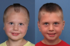 Bilateral Microtia Before & After 3