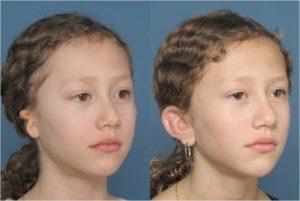 Medpor Ear Reconstruction